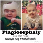 Plagiocephaly: My Son's Experience